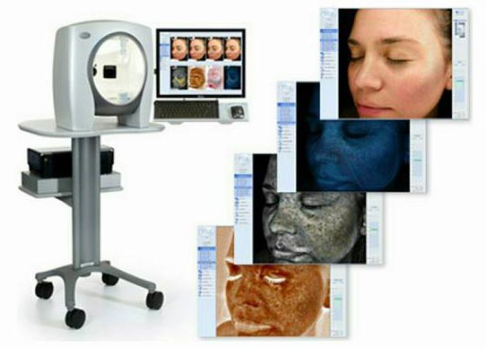 Novo - kompjuterska analiza kože